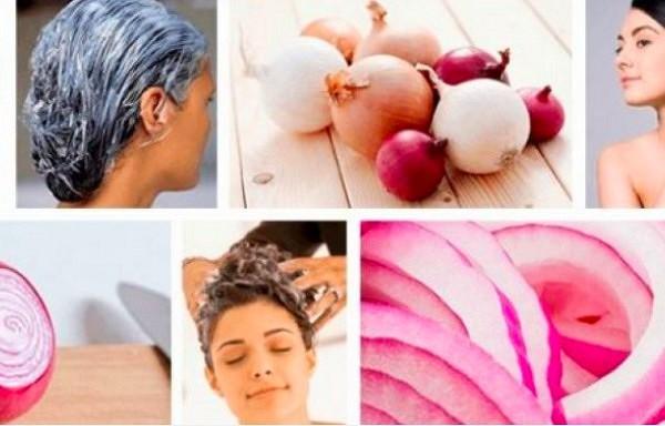 Kā izmantot sīpolu un kartupeli, lai ļoti ātri ataudzētu garus un biezus matus
