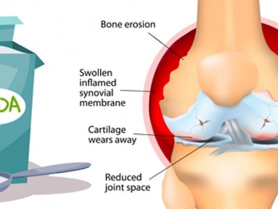 Kā izmantot sodu, lai atvieglotu sāpes artrīta gadījumā