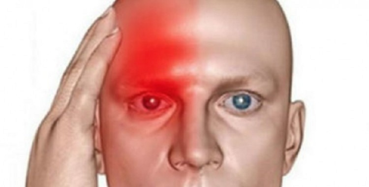 """Tas ir jāzina ikvienam! 10 smagi un nomācoši simptomi , kas liecina, ka Jums ir bijis """"Klusais insults"""" un drīzumā sekos otrs"""