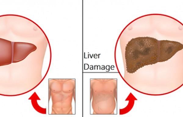 Septiņas brīdinošas pazīmes, kas liecina par aknu bojājumiem. Tās noteikti nevajadzētu ignorēt!