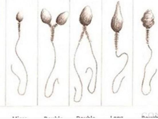 Desmit fakti par spermu, kurus, iespējams, nezinājāt