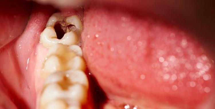 Septiņi dabas līdzekļi, kas palīdzēs novērst kariesu un zobu sāpes