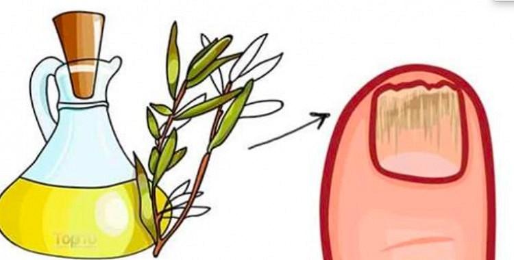 Piecas noderīgas tējas koka eļļas priekšrocības