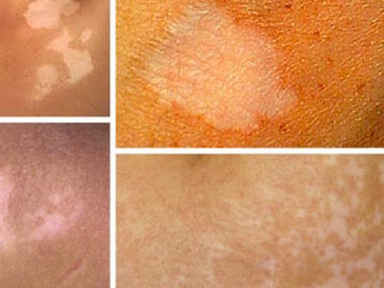 Kā atbrīvoties no baltajiem plankumiem uz ādas un vitiligo