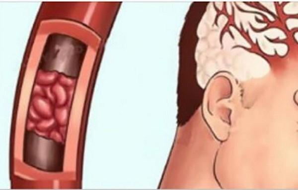 Magnija deficīts – simptomi, diagnoze un kā to pieņemt