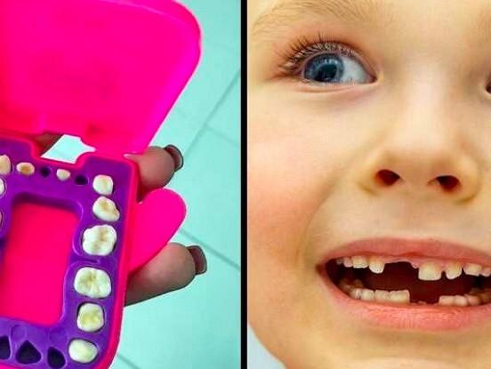 Kāpēc būtu svarīgi neizmest bērna piena zobus,bet saglabāt tos? Tie var glābt dzīvību!