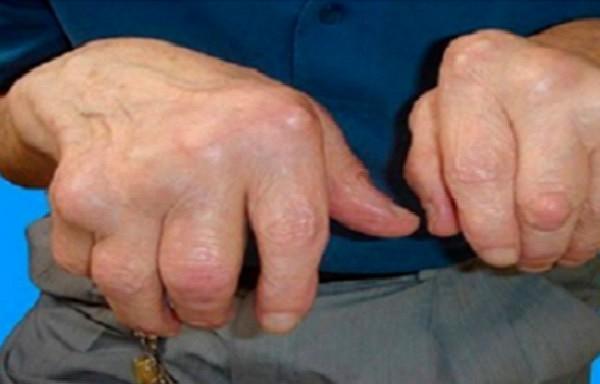Lielisks veids kā uzveikt artrītu