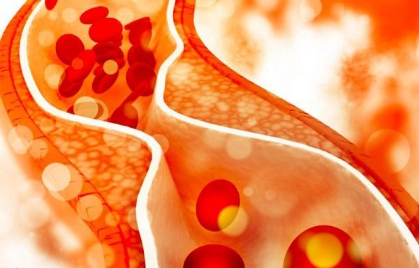 Desmit produkti, kas efektīvi pazemina holesterīna līmeni