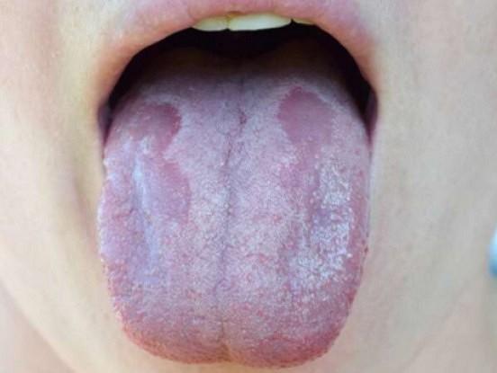7 simptomi, kas liecina-tev trūkst B12 vitamīns. Neignorē tos!