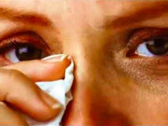 Ko darīt, ja asaro acis?