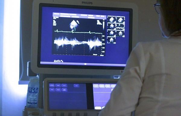 Kad pārbaudīt sirdi? Ehokardiologa ieteikumi.