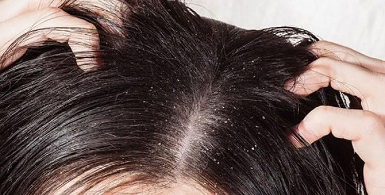 Ingvers pret matu izkrišanu, blaugznām un matu augšanas stimulēšanai