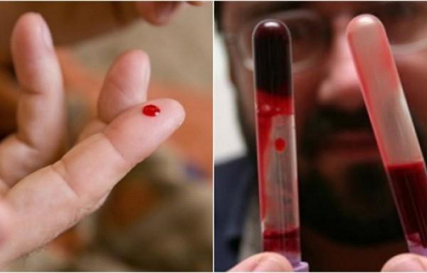 Biezas asinis. Kas mums par to būtu jāzina?