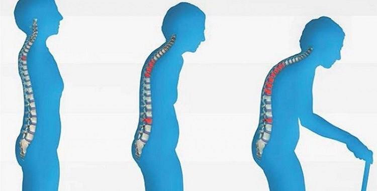 Osteoporoze: Kā mūsu ķermenis kļūst trausls.