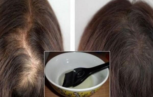 Dabiska eļļa, kas apturēs matu izkrišanu un nodrošinās kuplu frizūru