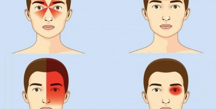 Ko galvassāpes tev pasaka par tavu vispārējo veselības stāvokli