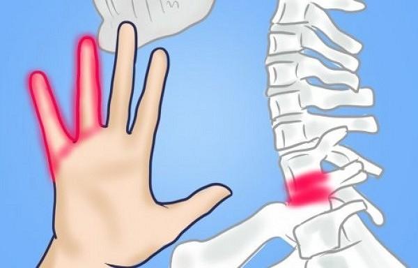 Kāpēc tirpst rokas? 7 iemesli, kuri liek aizdomāties par veselību