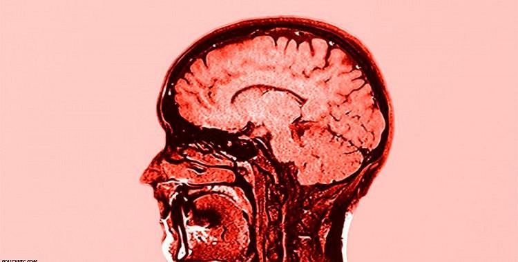 Kā darbosies smadzenes, ja izoperēt pusi no tām? Lūk, patiess stāsts