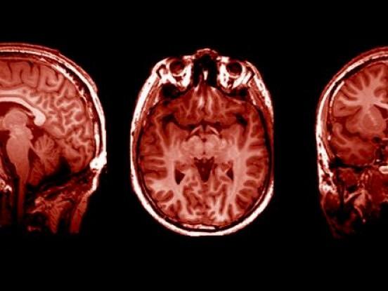 Pamatojoties uz pētījumiem, žēlošanās un sūdzēšanās var fiziski mainīt jūsu smadzenes un padarīt jūs nomāktus vai nemierīgus