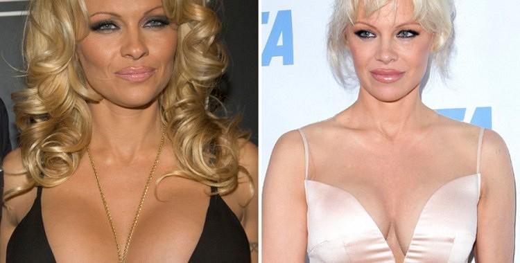 Kādas izskatās sieviešu krūtis pēc silikona implantu izņemšanas?(+FOTO)