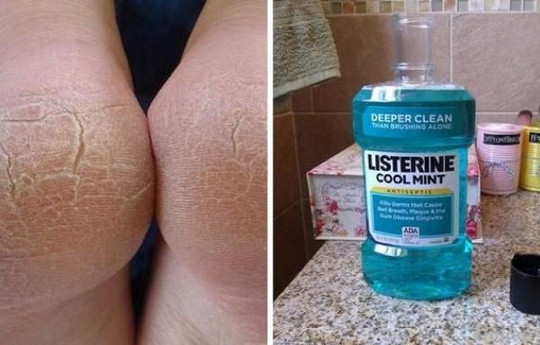 """10 pārsteidzoši """"Listerine"""" izmantošans veidi, par kuriem būtu jāzin katrai sievietei"""