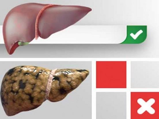 Mājas līdzekļi aknu taukainās hepatozes ārstēšanai