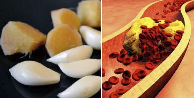 Ja Jums ir paaugstināts asins spiediens, pienācis laiks iztīrīt asinsvadus!